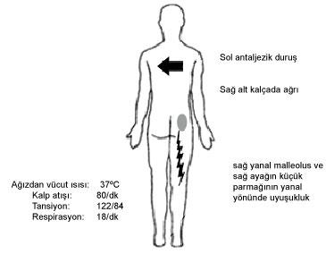 de ce rănesc articulațiile de la încheieturi articulația feselor doare